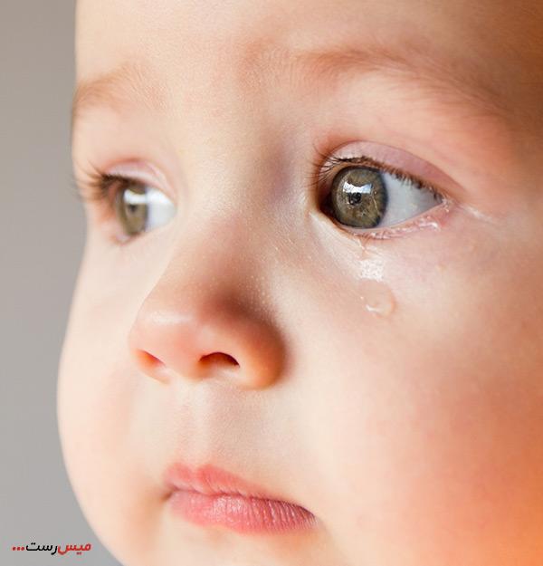 درمان انسداد مجرای اشک با ماساژ چشم نوزاد