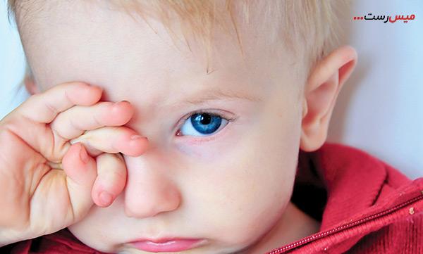 علائم انسداد مجاری اشک چیست؟