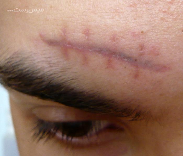 بافت زخم چیست؟