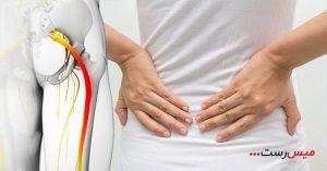 ماساژ بهبود درد سیاتیک